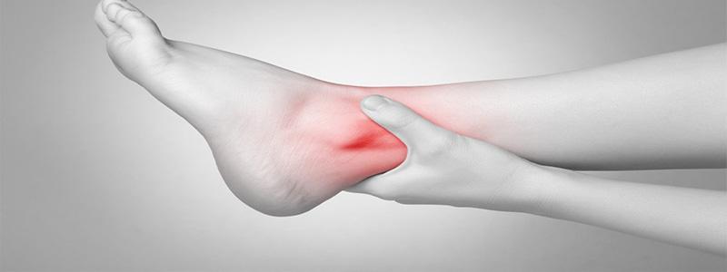 Ultramoderne Håndtering af en forstuvet fod | FHecht Fysioterapi NR-93