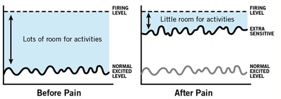 smerte-alarmsystem